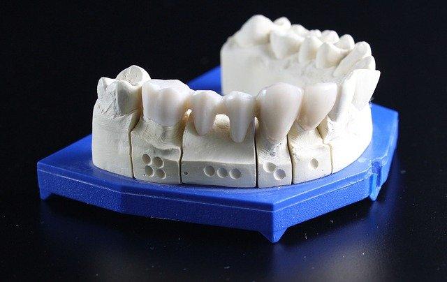 השתלות שיניים בקריות