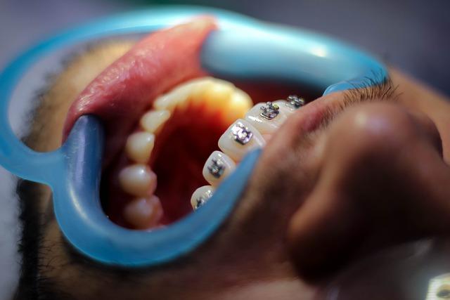 יישור שיניים בקריות