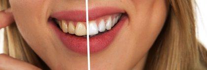 מהם היתרונות והחסרונות של ציפוי למינייט לשיניים?